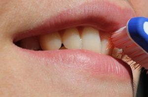 Comment entretenir ses couronnes dentaires